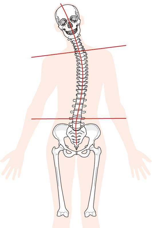 脊柱管狭窄症へのアプローチ